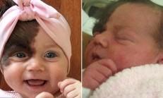 7 Aylık Sevimli Kız Bu Doğum Lekesi İçin Tam 7 Ameliyat Olacak